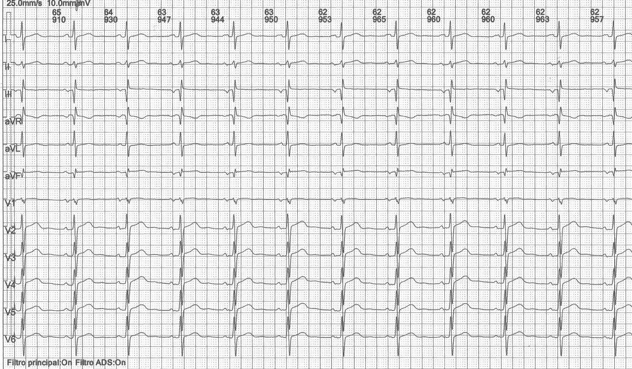 Hombre de 56 años con antecedentes de infección pulmonar hace años que presenta extrasístoles auriculares y TA en el Holter con secuela de miocarditis en RNM