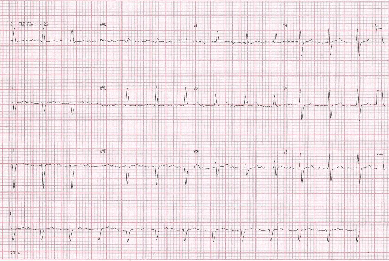 Paciente de 77 años, hipertenso y diabético que cursa con angor prolongado con aumento de troponina, que presenta imagen de bloqueo trifascicular en el ECG por compromiso de la DA proximal