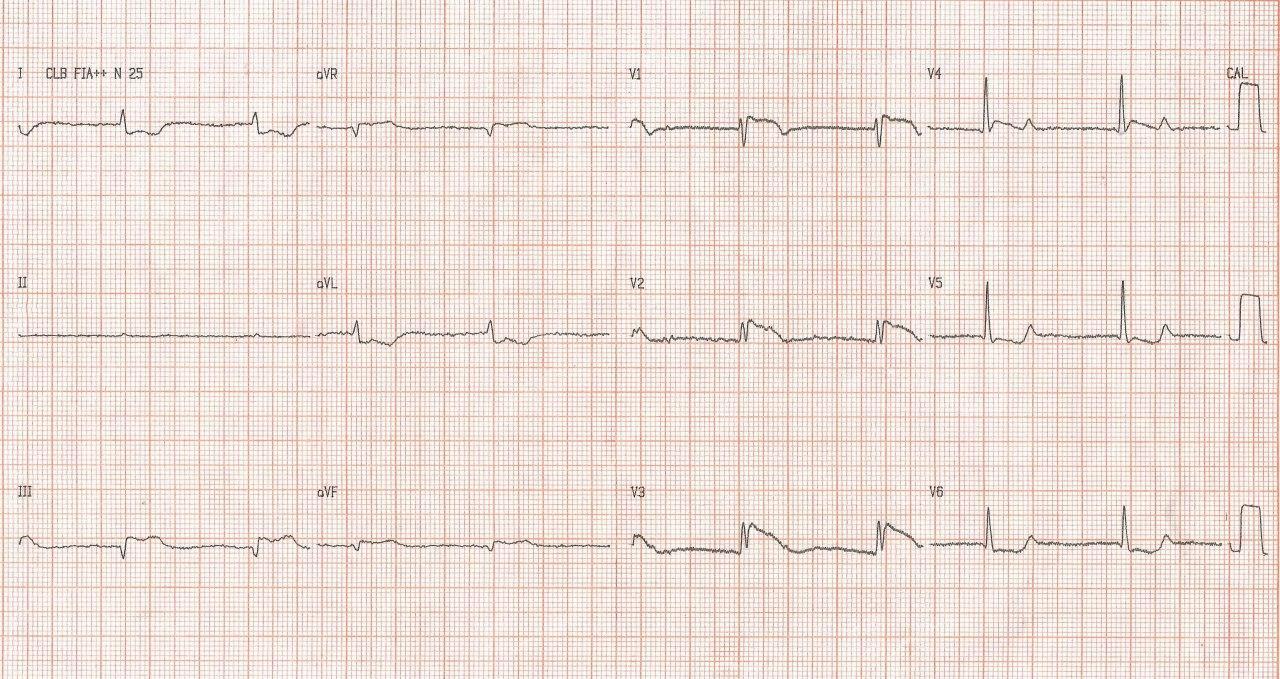Masculino de 84 años con factores de riesgo presenta angor prolongado por infarto agudo de VD que simula infarto de cara anterior con BRD y ritmo de la unión por oclusión trombótica de la CD