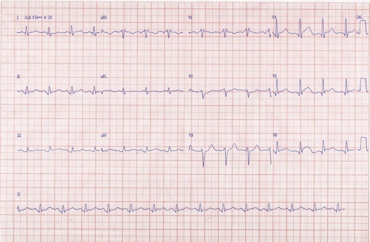 Joven de 23 años con pérdida súbita del conocimiento detectándose FV que es revertida exitosamente a consecuencia de cuadro de miocarditis aguda
