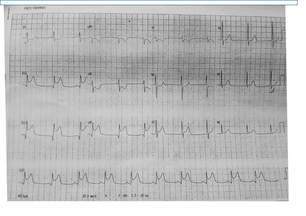 Hombre de 58 años con angor prolongado y compromiso hemodinámico con presencia de soplo holosistólico por infarto inferior complicado con CIV