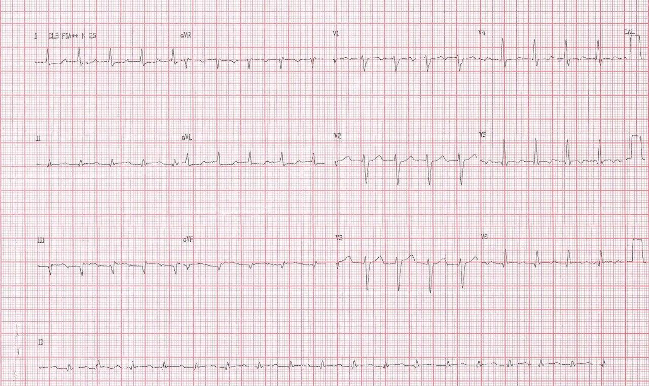 Hombre de 64 años con angor prolongado por IAM inferior que presenta TA 2:1 observándose fenómeno de Bix por compromiso de arteria marginal de la Cx