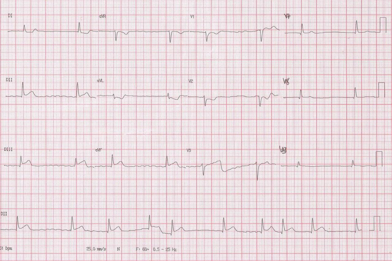 Paciente que en la evolución de un SCA cursa con FA por compromiso de ramo auricular que nace de arteria ventricular posterior que es revascularizada con recuperación de RS
