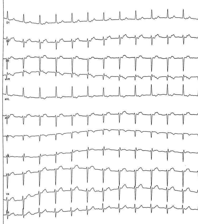 Mujer de 80 años con mareos frecuentes que presenta TRIN por doble vía nodal lenta – rápida que responde al suave MSC con pausas prolongadas por hipersensibilidad del seno carotídeo