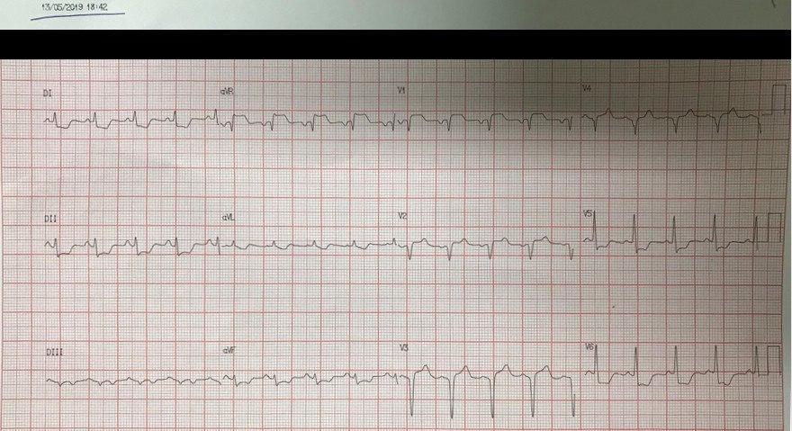 Mujer de 61 años con angor prolongado y disnea por enfermedad coronaria de tres vasos
