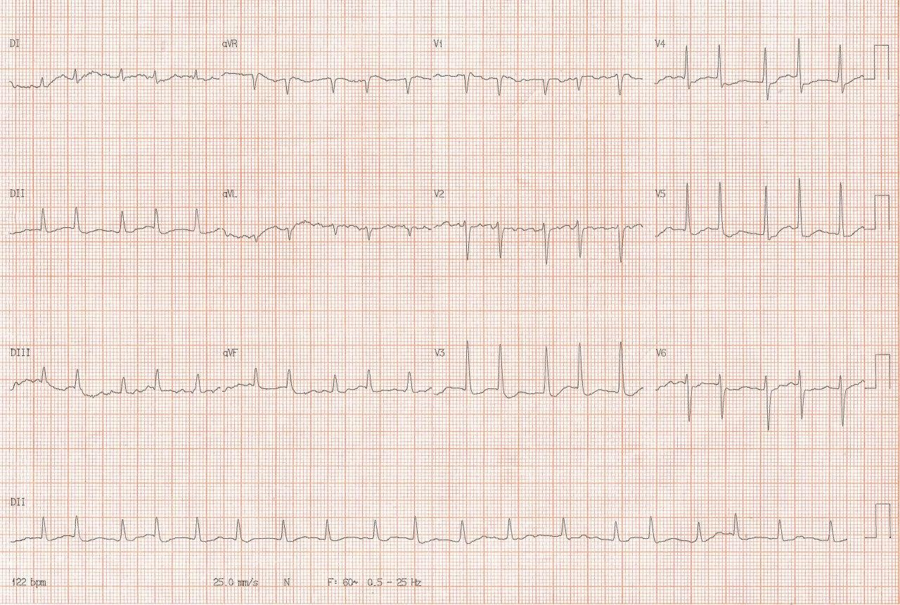 Mujer de 50 años portadora de cardiopatía reumática que refiere disfagia a sólidos y disfonía por megaaurícula izquierda que comprime el esófago y el nervio laríngeo recurrente izquierdo