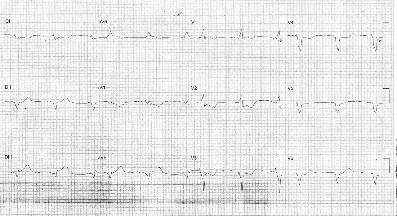 Hombre de 75 años con antecedente de implante de stent y CDI biventricular que presenta episodio de angor prolongado, con puntaje de 3 según los criterios de Sgarbossa, por oclusión de CD distal con trombo