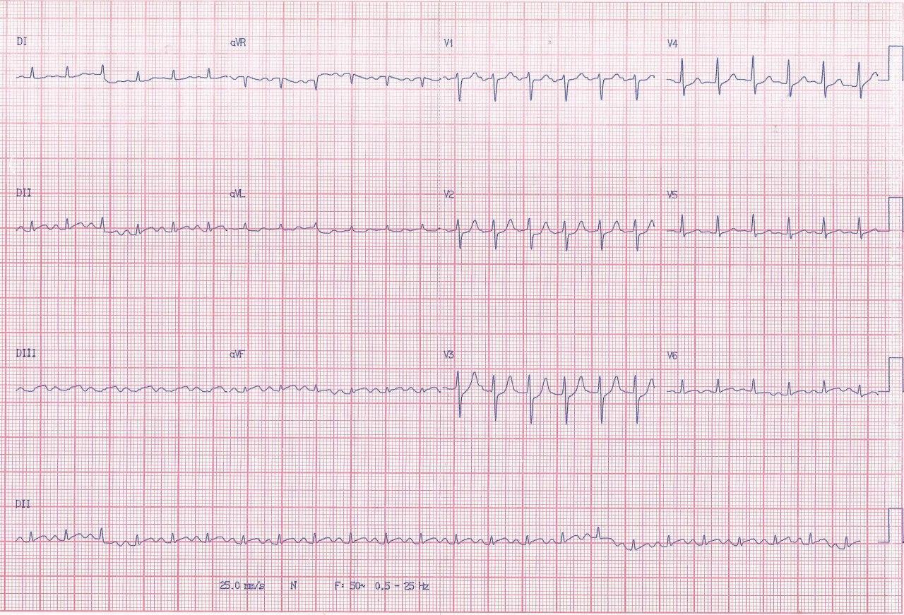 Hombre de 62 años hipertenso y diabético que presenta angor prolongado irradiado a dorso por SCA que compromete arteria Cx que presenta suboclusión con trombo