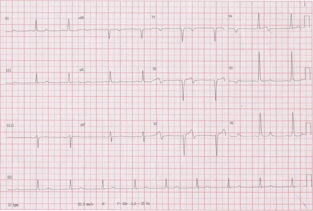 Hombre de 63 años portador de insuficiencia aórtica que consulta por dolor precordial con troponina negativa que presenta patrón ECG de pseudo Wellens con CCG normal y presencia de HVI
