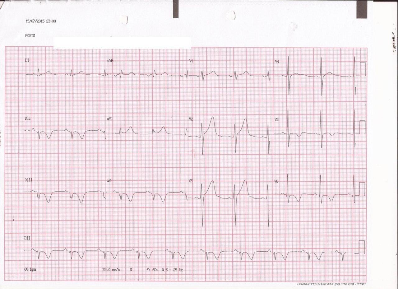 Paciente de 28 años con palpitaciones originadas en TV fascicular que determina la presencia de ondas T negativas por memoria cardíaca en el ECG con ritmo sinusal