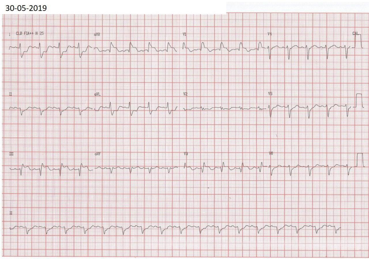 Mujer de 45 años con fiebre, mialgias y disnea progresiva, con aumento de troponinas, con ECG simulando SCA, con CCG normal, por miopericarditis aguda
