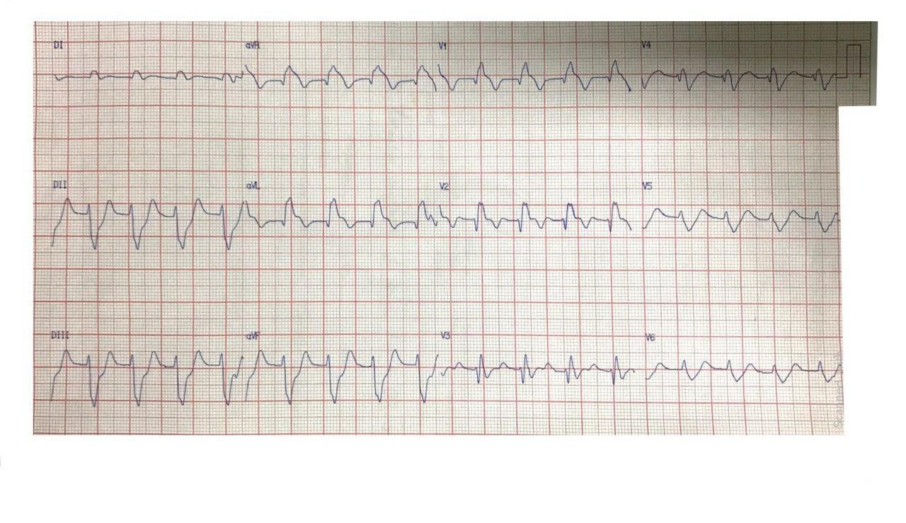 Paciente de 48 años con SCA e inestabilidad hemodinámica por compromiso de TCI