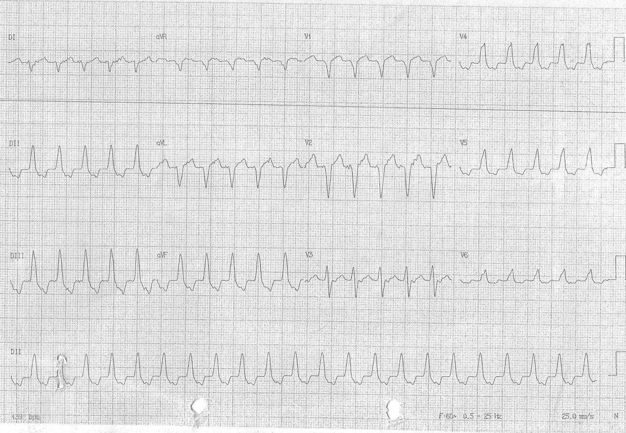 Hombre de 63 años con dolor punzante precordial y sudoración que presenta taquicardia de QRS ancho cuyo origen se halla en el séptum interventricular