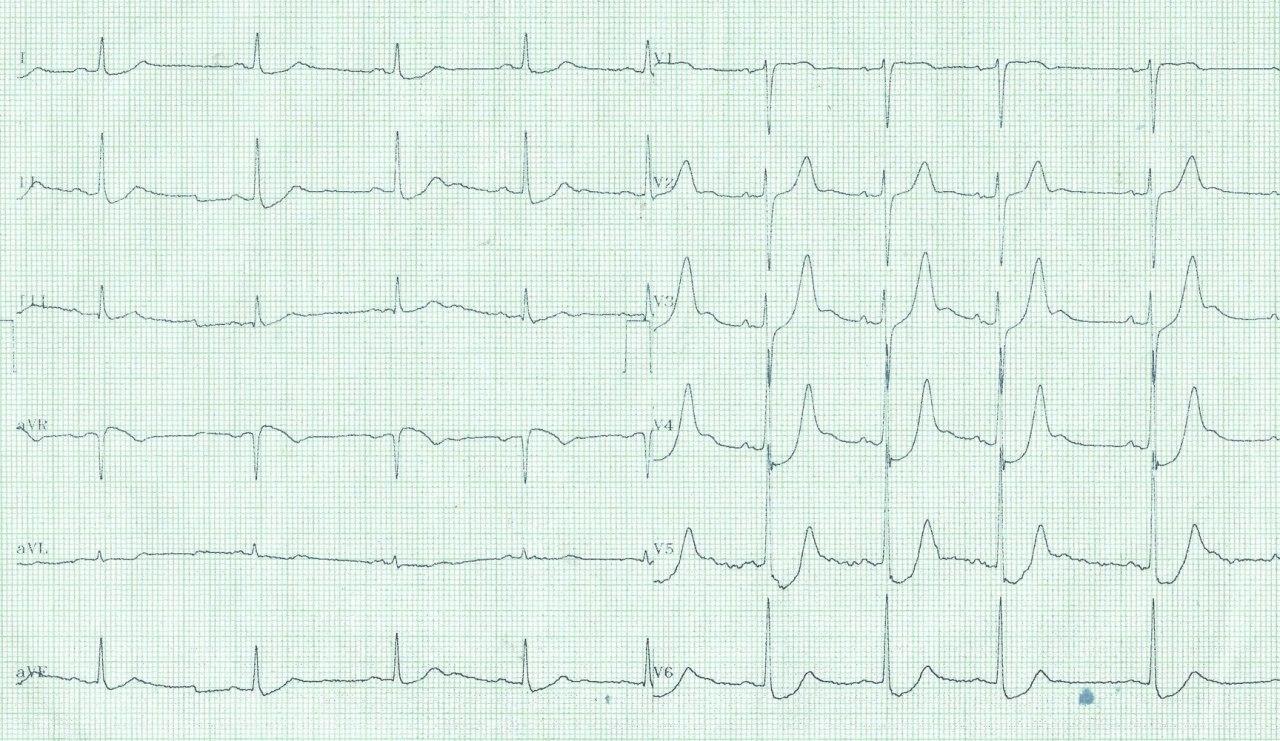 Paciente de 59 años con episodio de angor prolongado que presenta patrón de Winter en el ECG por compromiso de arteria Cx con DA normal