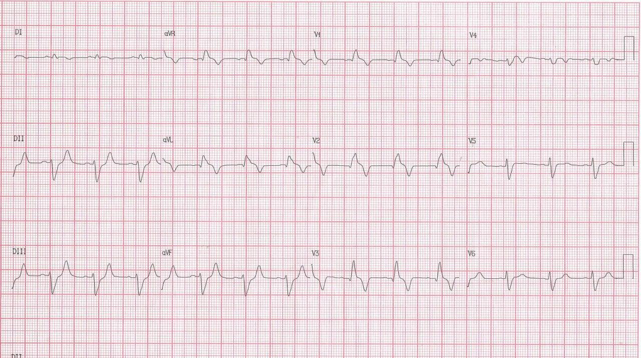 Paciente masculino de 54 años con episodio de angor prolongado debido a SCA por oclusión total de la DA y nacimiento anómalo de la Cx en el seno coronario derecho de la CD