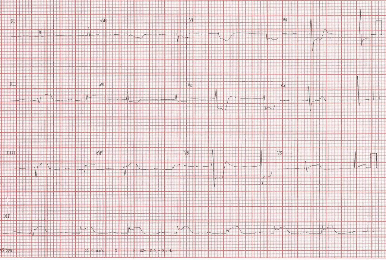 Hombre de 83 años cursando SCA con ritmo de la unión por compromiso de la arteria del nódulo AV en este caso ramo de la arteria Cx, con recuperación post angioplastia
