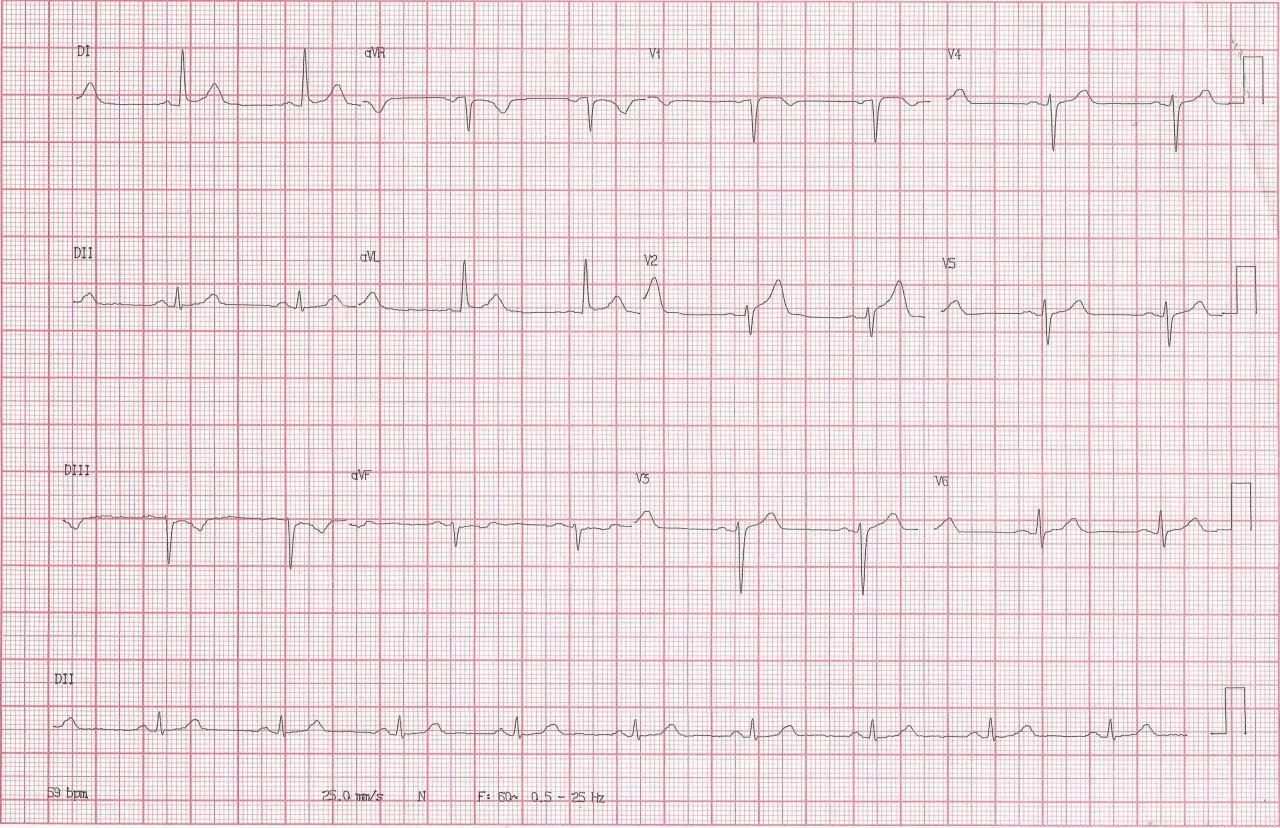 Hombre de 54 años hipertenso y diabético que presenta angor prolongado cuyo ECG presenta signos de isquemia grado I debidos a oclusión de DA