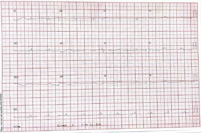 Mujer de 57 años con disnea progresiva y edemas en MMII que cursa con severo derrame pericárdico