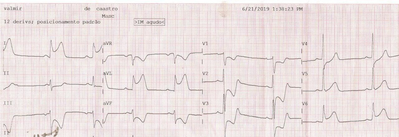 ECG correspondiente a paciente cursando SCA por compromiso de la CD, con inversión de cables del hemicuerpo izquierdo