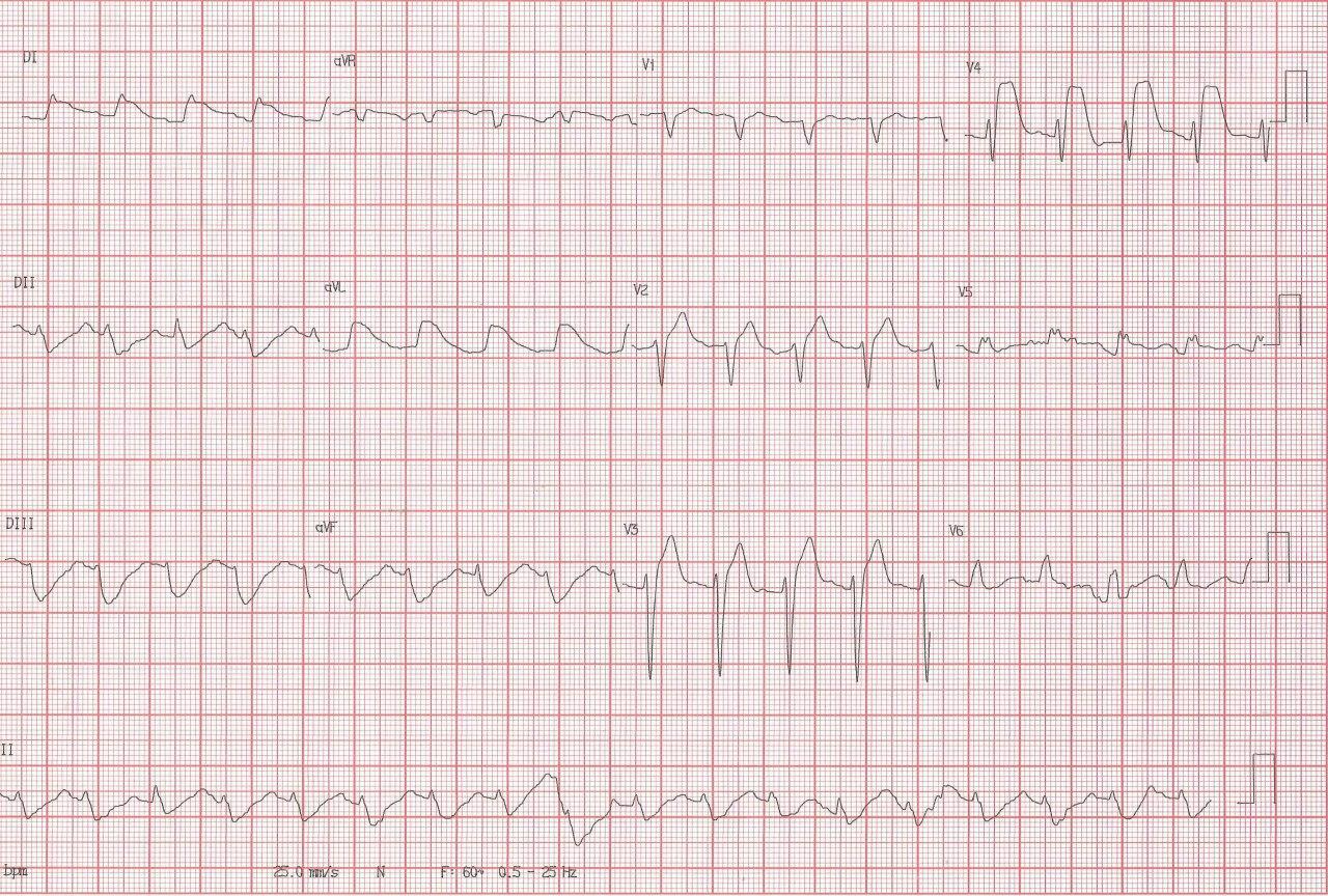 Paciente de 35 años con antecedente inmediato de reemplazo valvular aórtico que suspende tratamiento anticoagulante presentando síncope y FV por embolia coronaria a la DA