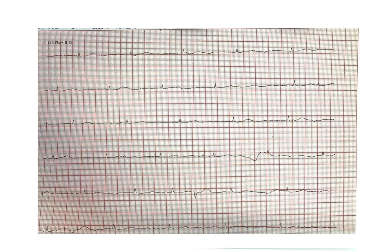 Mujer con factores de riesgo que presenta episodio sincopal que requiere implante de MP transitorio con desplazamiento posterior del electrodo y falla de captura y presencia de ondas T electromoduladas con arterias coronarias sin lesiones significativas