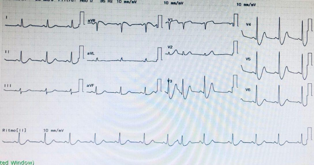 Paciente que cursa SCA por oclusión de la DA cuyo ECG presenta el denominado patrón de Winter, previamente descripto por Sclarovsky