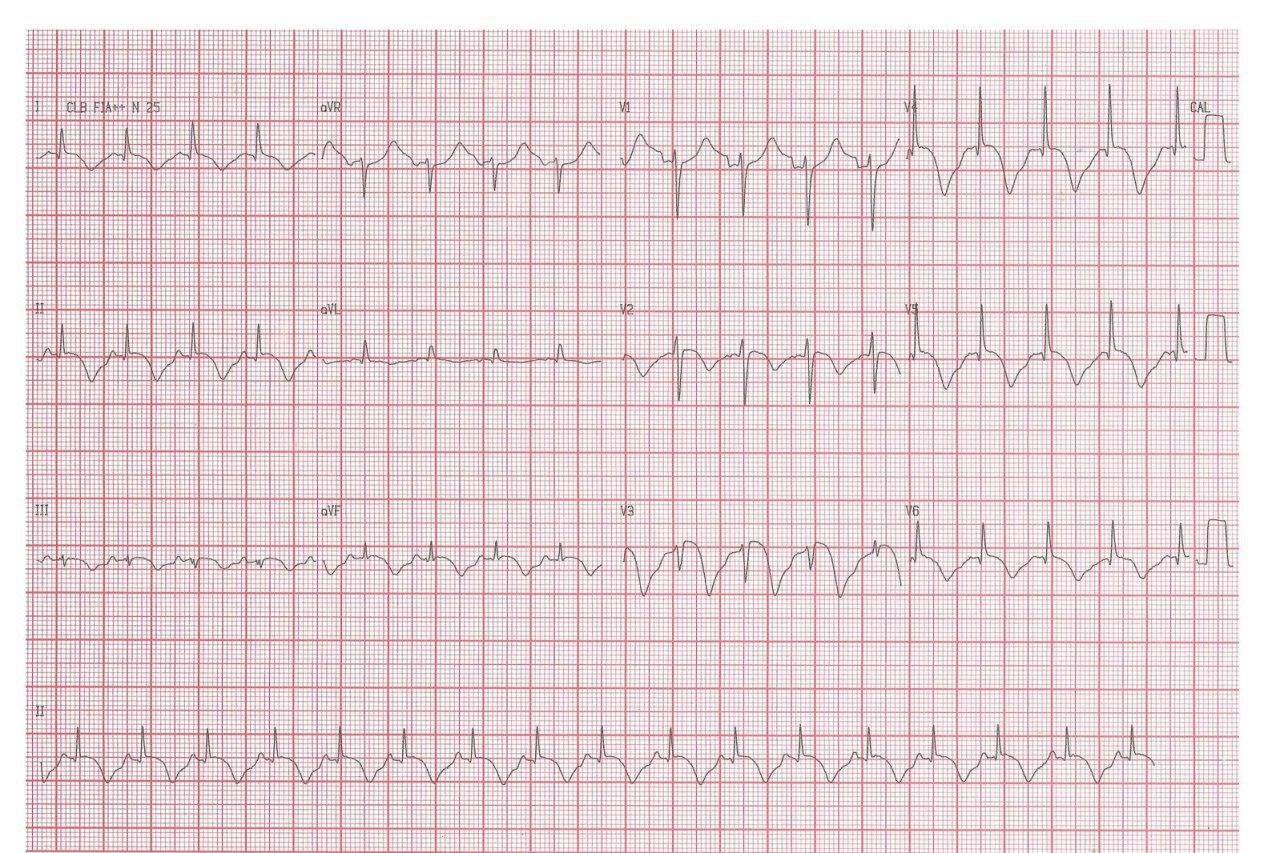 Hombre de 61 años que durante broncoscopía para descarte de CA pulmonar desarrolla intenso broncoespasmo, precordialgia y discreta elevación de troponina, constatándose coronarias normales e hipocinecia apical que empeora con salbutamol, sospechándose síndrome de Takotsubo