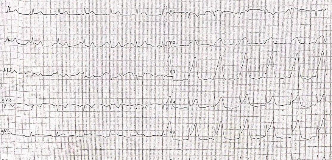 Paciente de 51 años con angor prolongado que presenta un SCA por compromiso de la DA con trombo y que en un segundo ECG presenta RIVA indicando reperfusión