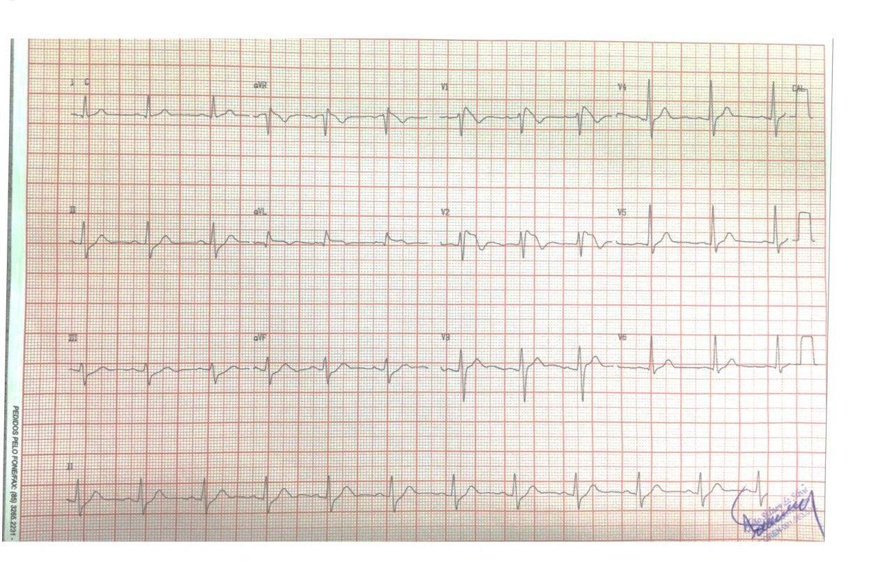 Hombre de 38 años con antecedentes familiares de MS cuyo ECG preoperatorio de rinoplastia muestra un patrón Brugada tipo I