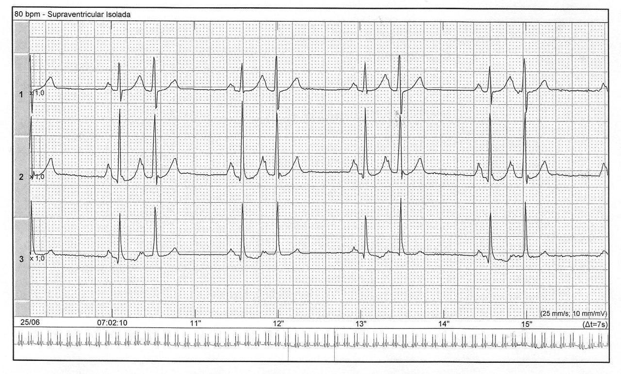 Mujer de 63 años con palpitaciones por extrasistolia auricular bigeminada con ondas P´ sobre la rama descendente de Ta previa, signo predictor de FA