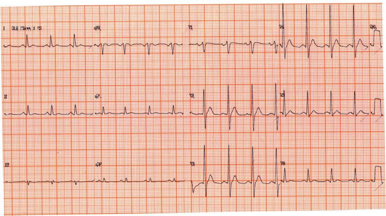 Paciente de 71 años portador de Ca de próstata con metástasis óseas e hipernefroma que presenta ECG con QT corto debido a franca hipercalcemia