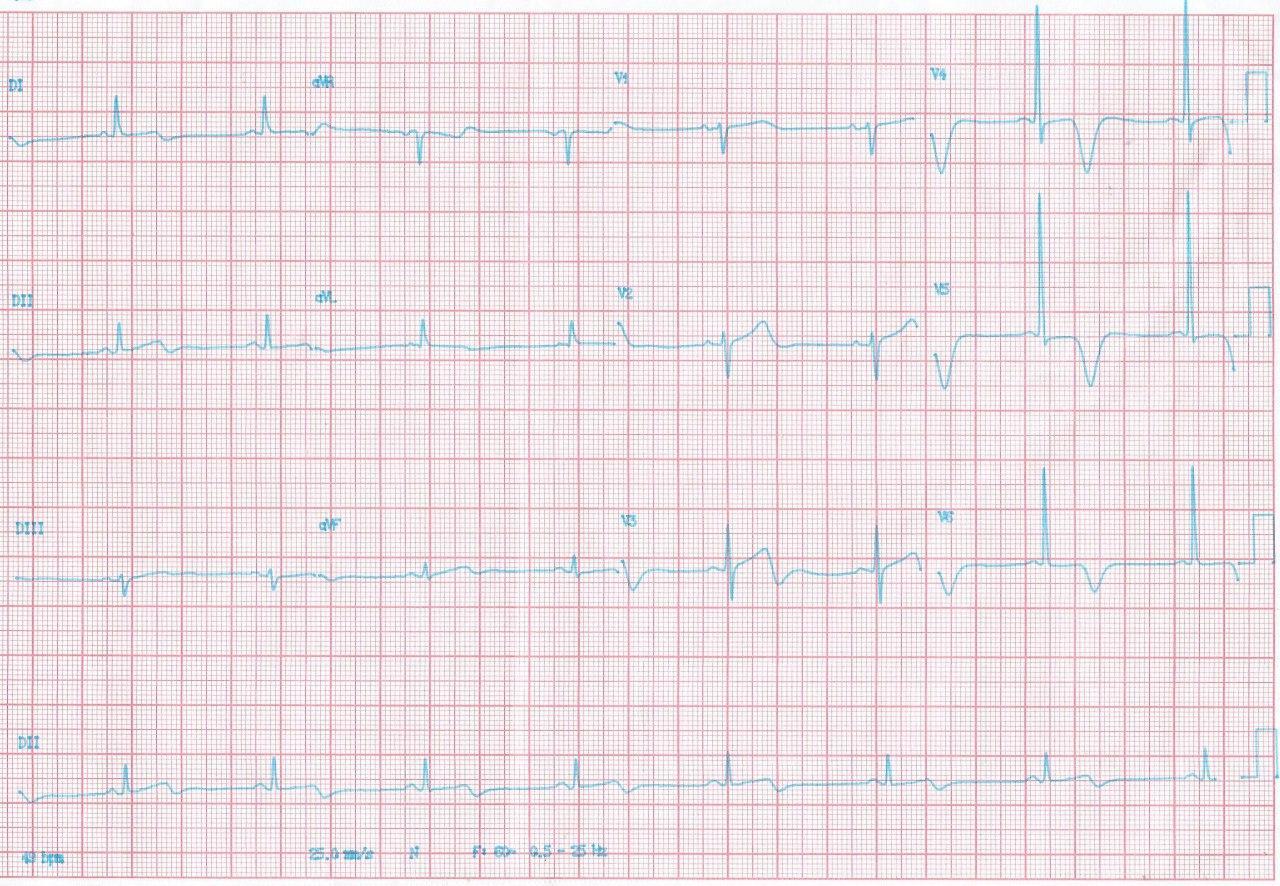 Mujer de 77 años con precordialgia atípica portadora de miocardiopatía hipertrófica apical cuyo ECG simula un síndrome de Wellens