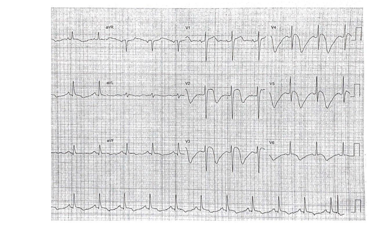 Mujer de 73 años con epigastralgia, náuseas y vómitos con troponina positiva, e hipocinesia moderada en la zona apical con arterias coronarias normales debidos a miocardiopatía de TakoTsubo