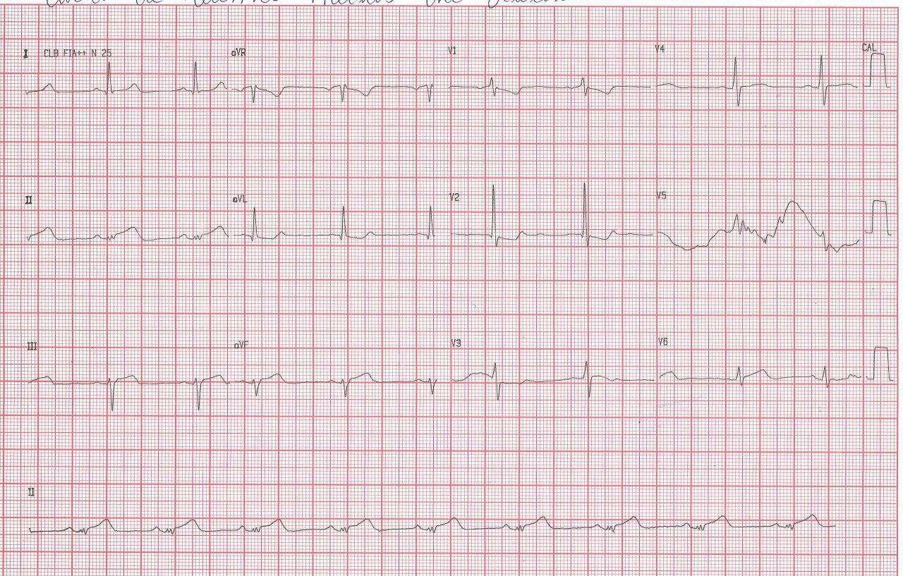 ECG de paciente que cursa SCA con sobreelevación de ST DII > DIII lo que indica que la arteria culpable es la Cx