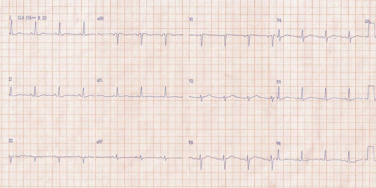 Mujer de 33 años sin cardiopatía estructural, recuperada de FV que presenta SQTL congénito