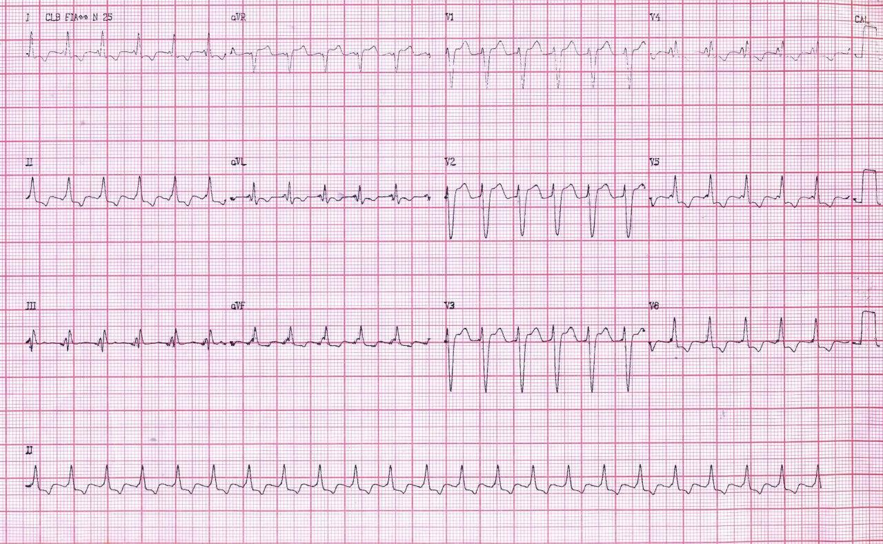 Hombre de 59 años hipertenso no controlado que presenta taquicardia de frecuencia aproximada a 150 lpm en la que el MSC permite diagnosticar como aleteo auricular 2:1
