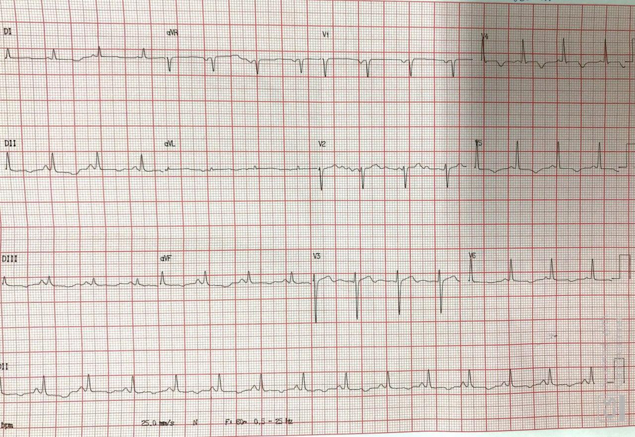 Mujer de 38 años con historia previa de IAM e implante de dos stents un año antes que presenta episodio de FV constatándose lesiones severas en ambos implantes y que a posteriori presenta espasmo coronario durante el sueño