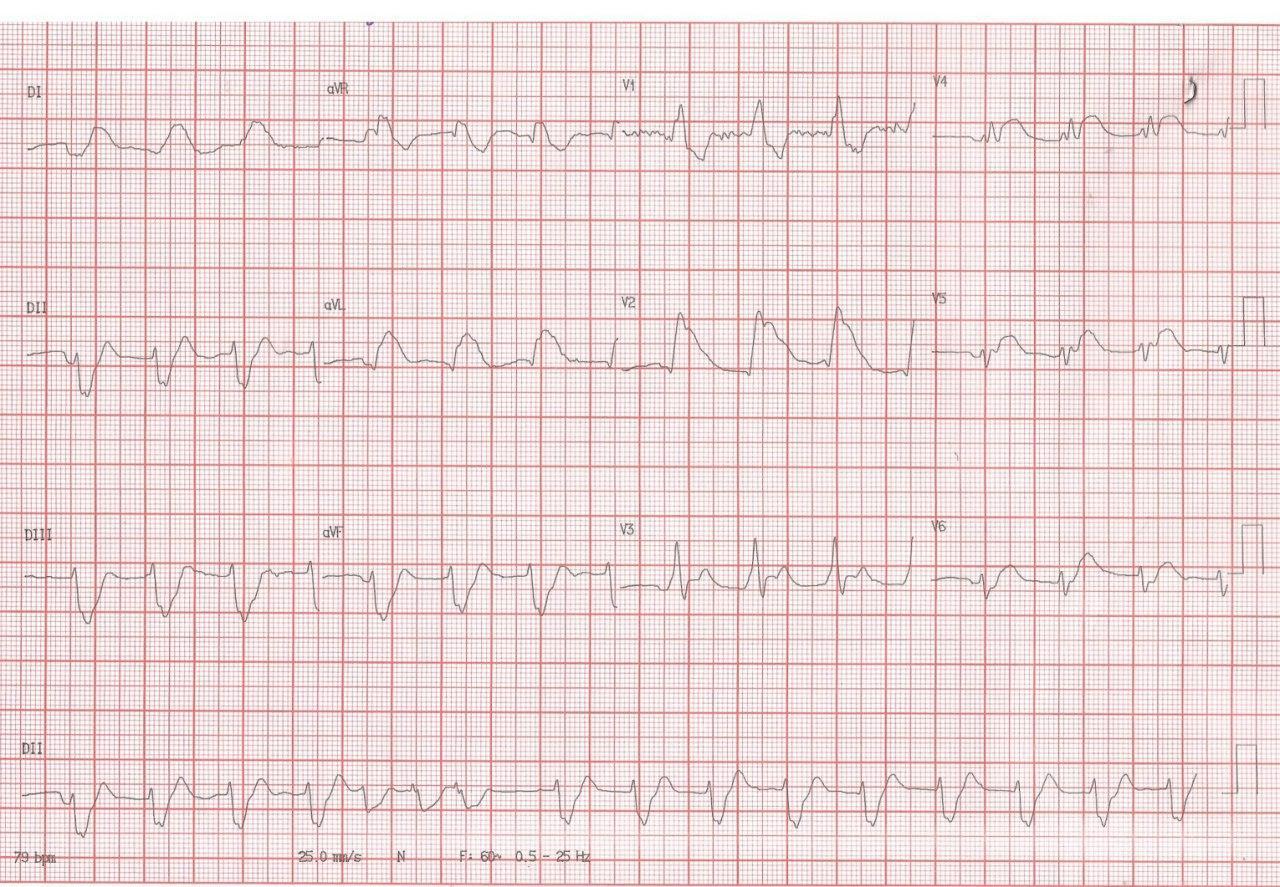 Hombre de 85 años con angor prolongado y evolución al shock cardiogénico debido a oclusión total de tronco de coronaria izquierda