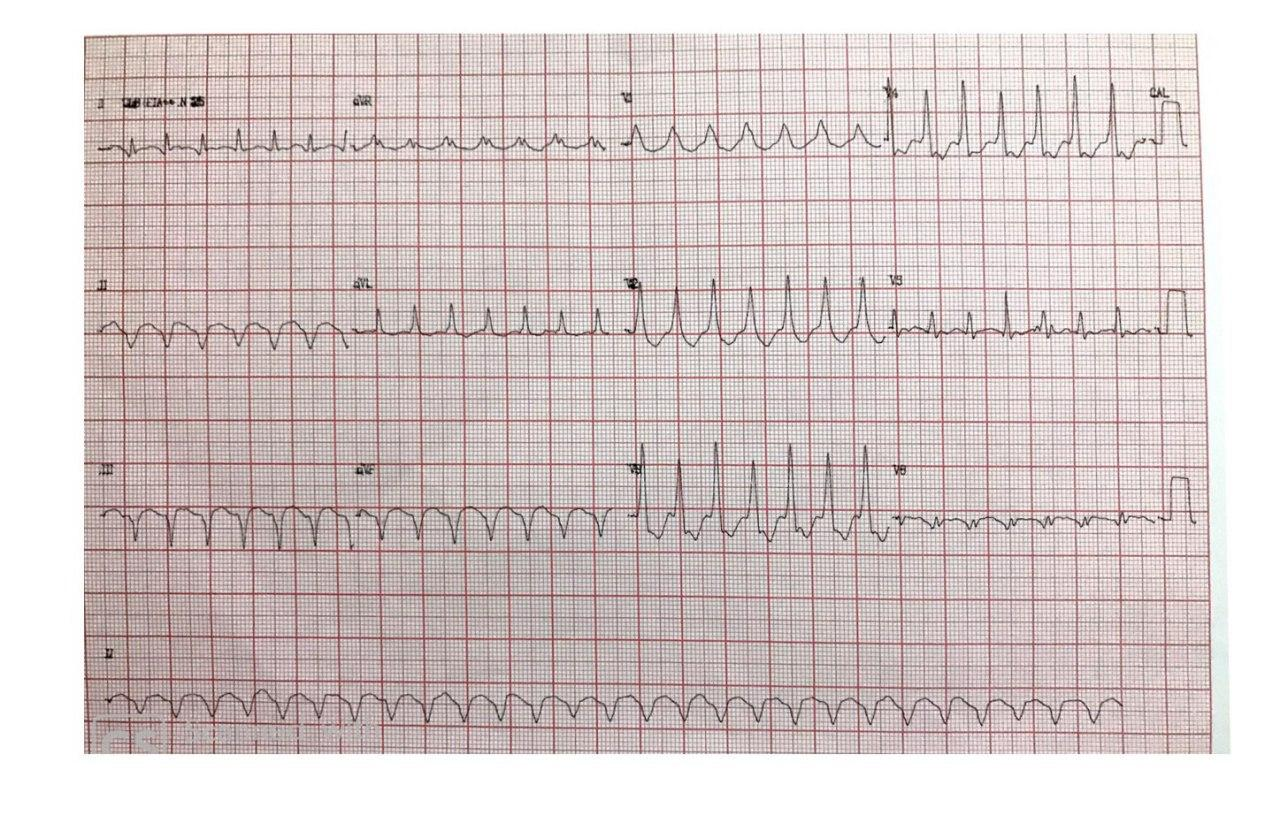 Paciente masculino de 61 años con antecedente inmediato de infarto agudo de miocardio hace una semana por oclusión total de CD, que presenta TV originada en la cicatriz necrótica