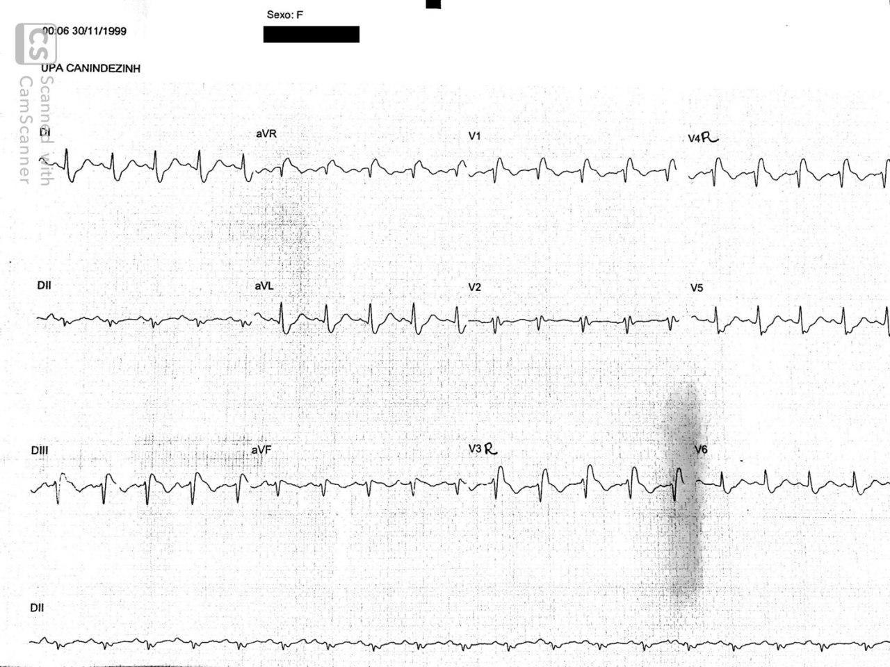 Paciente de 48 años que presenta súbito dolor toráccico, relajación de esfínteres y síncope con presencia de BRD intermitente por presentar TEP bilateral con respuesta exitosa a la trombolisis