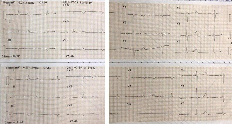 Hombre de 71 años portador de hepatopatía alcohólica e insuficiencia renal que cursa con hipocalcemia e hiperpotasemia cuyo ECG presenta QT largo