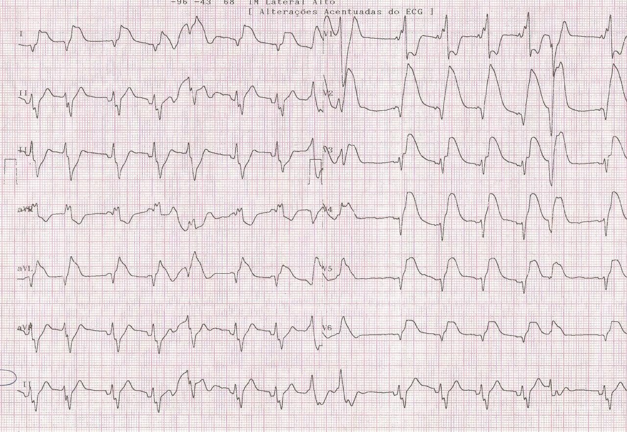 Paciente masculino de 39 años que presenta brusco episodio de angor y síncope con evolución al shock cardiogenico irreversible por presencia de trombo en TCI y DA proximal