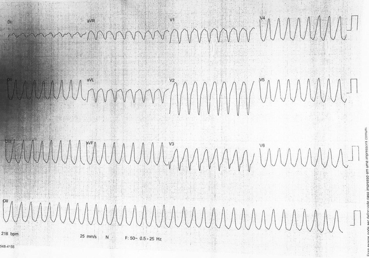 Paciente masculino que presenta somnolencia, sudoración e hipotensión por presencia de TV en contexto de SCA por oclusión total de DA y suboclusión de Mg de Cx con sospecha de trombo que migró desde el TCI