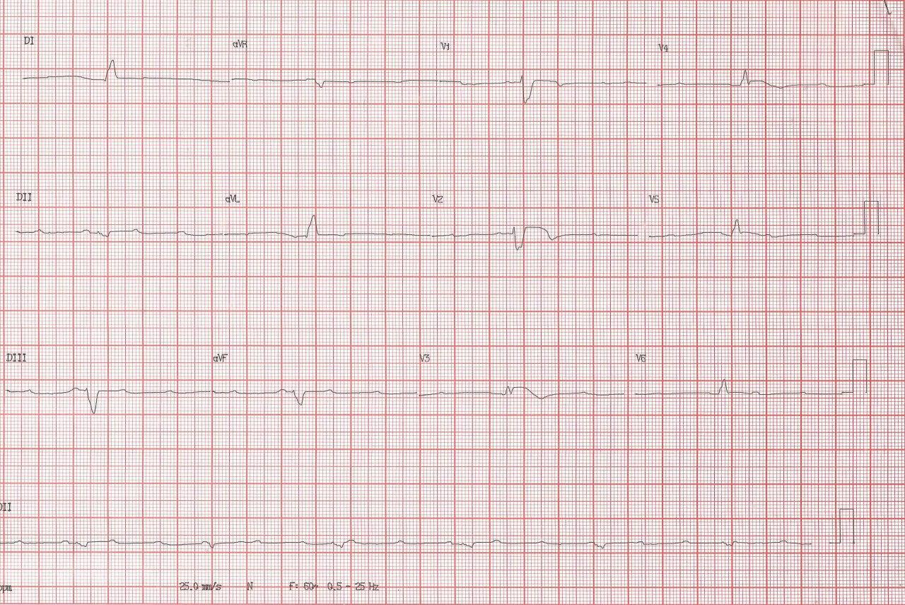 Hombre de 82 años con disnea súbita y síncope por BAV de alto grado originado en IAM anterior por oclusión de arteria DA