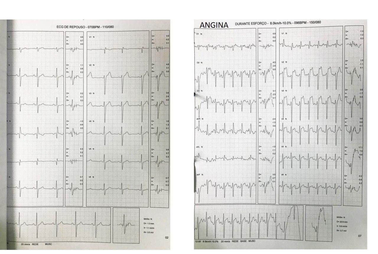 Paciente masculino de 24 años con opresión toráccica intraesfuerzo correpondiendo a una angina vasoespástica inducida por el ejercicio