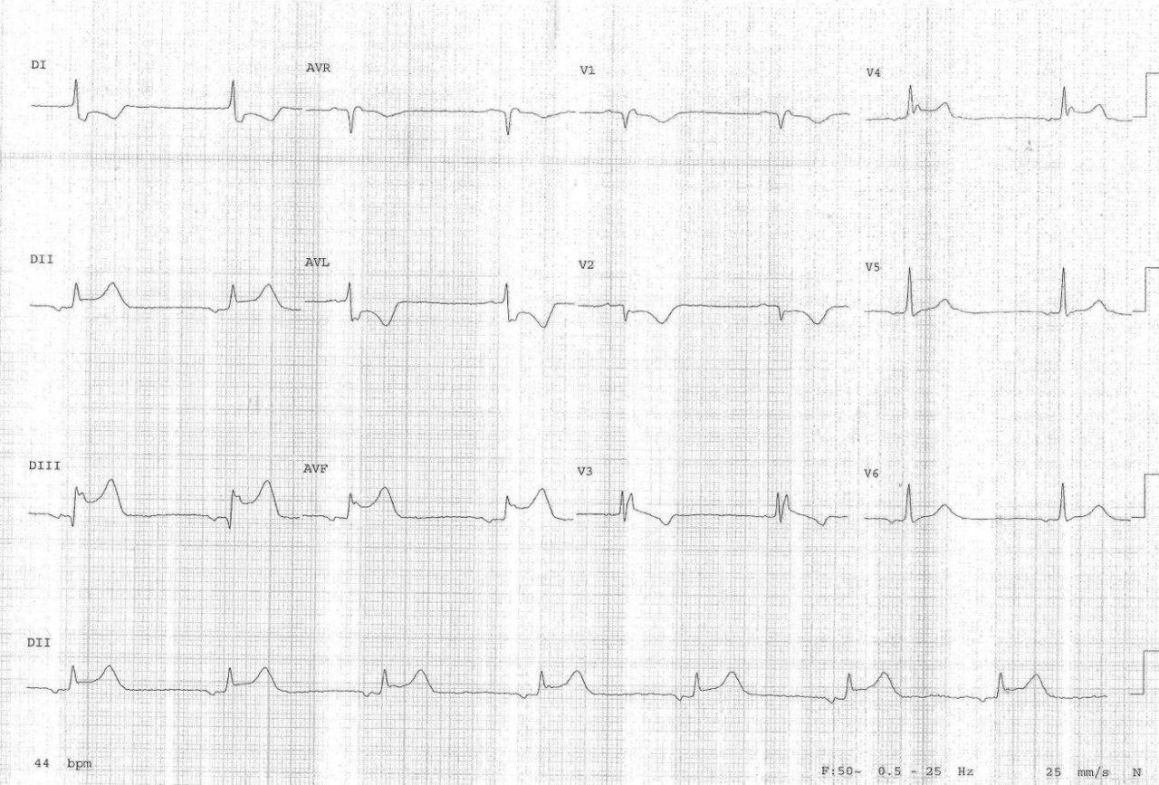 Paciente de 82 años con angor nocturno y síncope por disfunción sinusal por isquemia auricular debido a compromiso de CD proximal que es angioplastiada