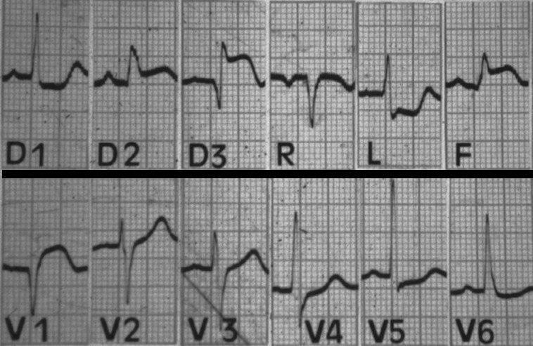 Paciente que cursa síndrome coronario agudo con IAM de VD por compromiso de la CD proximal