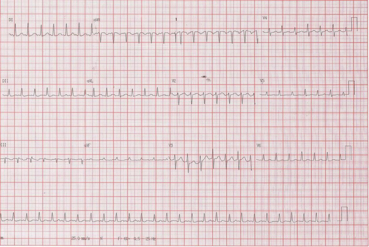 Gestante de 30 años con palpitaciones por presencia de taquicardia auricular ectópica con foco adyacente a nódulo sinusal por lo cuál la taquicardia simula ser una taquicardia sinusal inapropiada