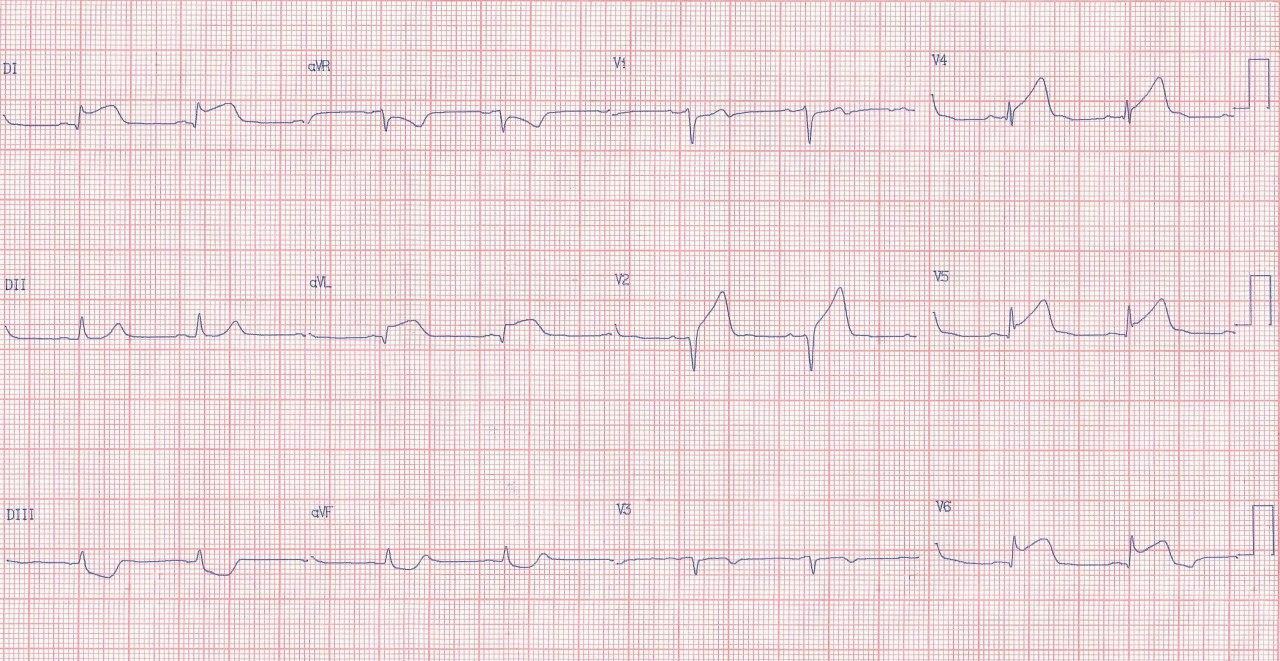 Paciente cursando IAMCEST de cara ánterolateral media/baja por compromiso de la arteria 1ª diagonal