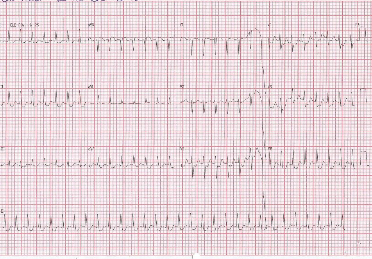 Mujer de 71 años con antecedentes de enfermedad coronaria e implantes de stents con angor y palpitaciones por presencia de TRIN, con típica «pseudo r» en V1 y «pseudo s» en derivaciones de los miembros